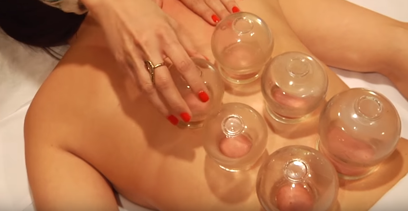 cupping therapy 2